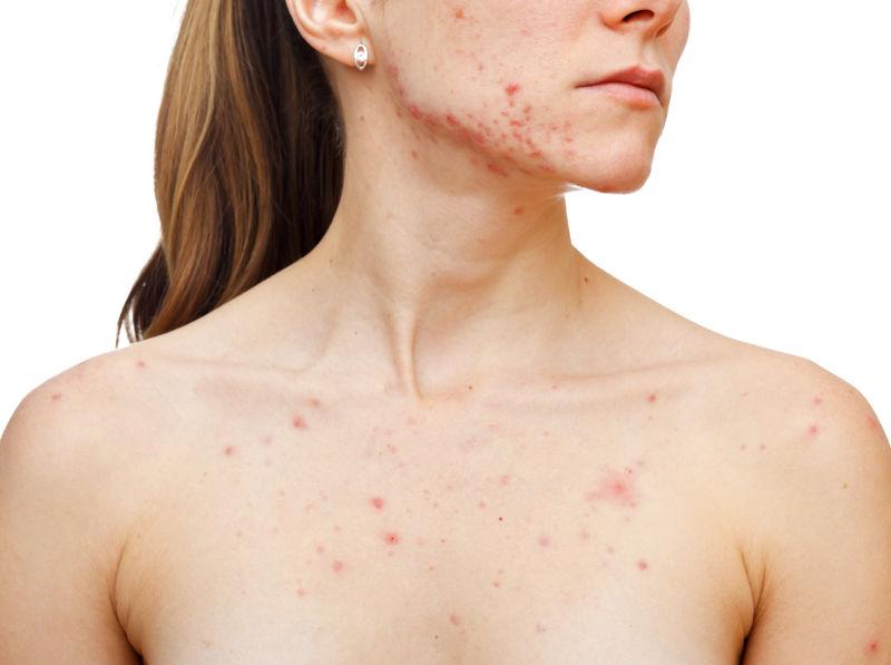 Akne im Gesicht und Brust einer Frau