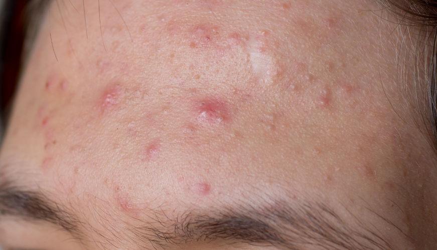 Akne auf der Stirn