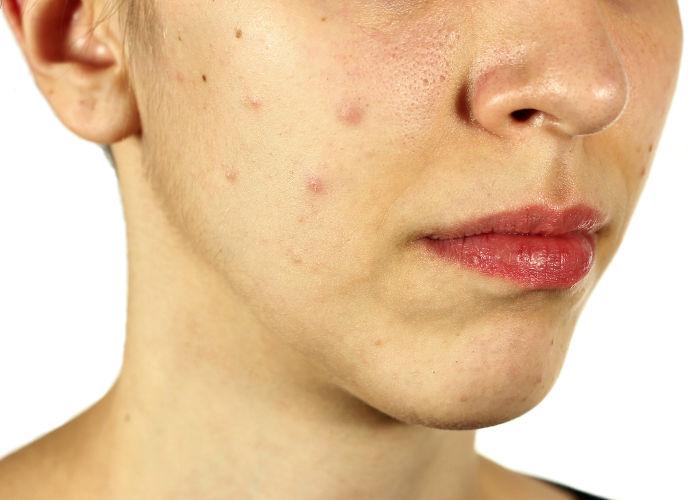 Akne im Erwachsenenalter