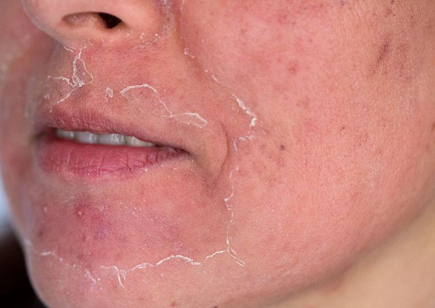 Chemisches Peeling