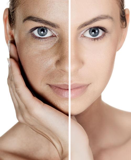 Zwei Gesichtshäften: große Poren und reine Haut