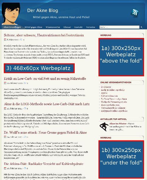 Standard-Werbeplätze Startseite Akne Blog