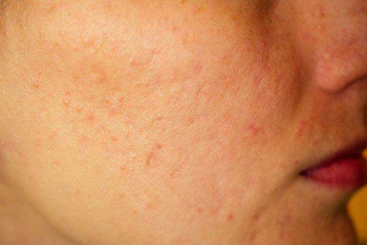 Unreine Haut auf der Wange einer Frau